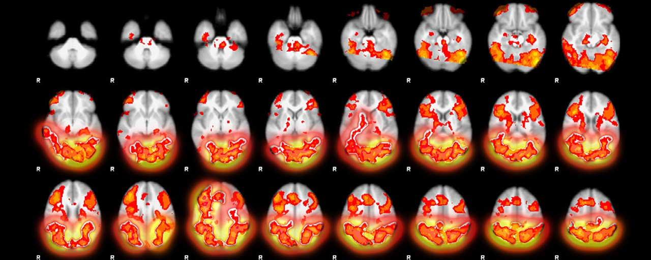 Meditação e o seu Cérebro